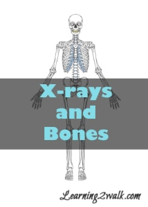 X-rays and Bones Themed Preschool Math