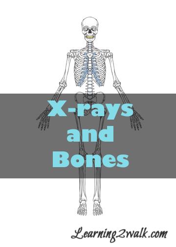 xrays and bones cover image